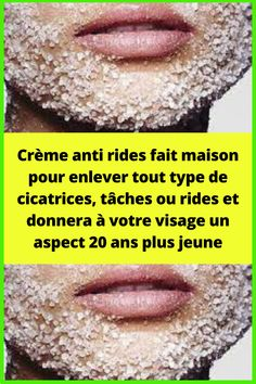 Creme Anti Rides, Gym, Beauty, Clean Face, Face Beauty, Natural Treatments, Natural Remedies, Face Peel Mask, Beauty Recipe