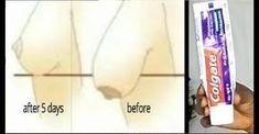 Diş Macunu ile Göğüslerinizi 5 Günde Dikleştirin | Hatunzade.Com Dry Red Wine, Body Challenge, Natural Solutions, Body Weight, Detox, Fitness Workouts, Beauty Routines, Skincare Routine, Aspirin