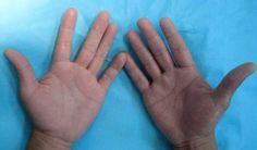 Remedios para manos sudorosas