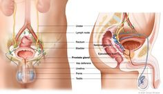 Causes and Symptoms of Prostate Cancer