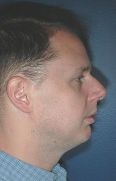 Facial profiles concave