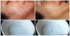 This Face Mask Magically Removes Stains, Acne Scars And Wrinkles After Second Use – World of Health 365