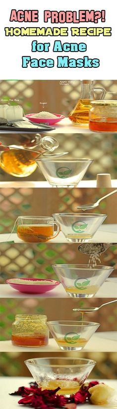 Acne Problem?! Homemade Recipe for Acne Face Masks Perfect natural remedies for getting rid of acne breakouts and eliminating acne scars are home made face masks. There are home made recipes include a variety of ingredients and can help nourish your skin and will help you eliminate acne-related problems. Honey, which is used in all … ** Click on the image for additional details.