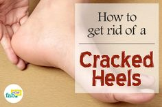 Cracked heels, also known as heel fissures, is a common problem that results from a lack of proper foot care.    Mostly caused by lack of moisture, dry air, an unhealthy diet, wearing the wrong footwear, aging