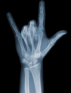 Rock On ( X-ray photos by Nick Veasey )