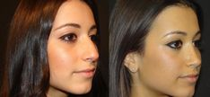 Check the female Rhinoplasty before and after gallery and let us know if you have questions about our surgical procedures!