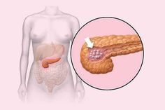 ¿Sabes para qué sirve el páncreas y cómo cuidarlo?
