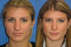Along with the aesthetic benefits of nose surgery, there are a growing number of health benefits as well. In fact, if you require rhinoplasty surgery for a specific health-related reason your insurance may actually cover the costs associated with the entire treatment. View our before/after photos...