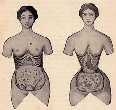 corset deformation body