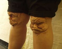 ....I Had a nightmare once where an old lady Had knee's that looked just like these...her  Legs ended up eating eachother...