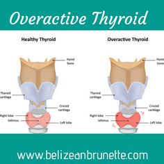 Hyperthyroidism or overactive thyroid is a condition in which the thyroid gland makes more thyroid hormone than your body needs. Thyroid Cancer Symptoms, Thyroid Hormone, Thyroid Health, Thyroid Test, Hyperthyroidism Symptoms, Hypothyroidism, Overactive Thyroid, Thyroid Problems, Health