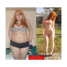 Bariatric surgery dating