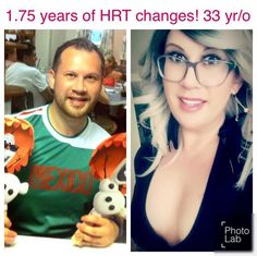 33 year old MTF: 1 year and 7 months on HRT! So happy and thankful for the changes!