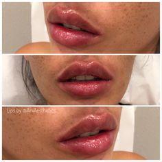 Facial Fillers, Dermal Fillers, Lip Fillers, Lip Job, Nose Plastic Surgery, Facial Aesthetics, Lip Shapes, Lip Injections, Full Lips