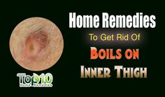 Home Remedies To Get Rid of Boils on Inner Thigh http://www.top10homeremedies.com/how-to/how-to-get-rid-of-boils-on-inner-thigh.html #boils #home #remedies #top10homeremedies