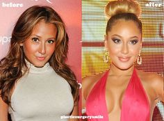 Adrienne Bailon Plastic Surgery and After