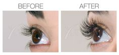 Xtreme Lashes® Eyelash Extensions Before & After Photos
