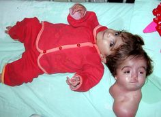 Manar Menaj (2004-2006) of Egypt was born with a partially formed conjoined twin joined to her head.  The second head could blink and smile, but it was not known whether it had conscious thought.  To save Manar's life, the second head was removed successfully, but Manar died a year later of a brain infection.