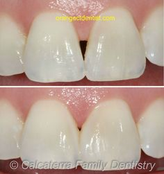 Detailed before and after photos of how we fixed the dreaded black triangle in a patient in our Orange, CT dentist office with dental bonding. Dental Photos, Dental Bonding, Family Dentistry, Triangle, Black, Food, Teeth, Black People, All Black