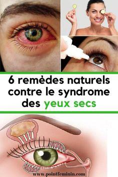 6 remèdes naturels contre le syndrome des yeux secs #yeux#secs #secheresse #remede #naturel