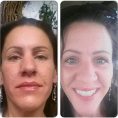 Jenelle used redefine, eye cream, roller and night renewing serum.