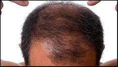 10 Effective Ways to Treat Telogen Effluvium You Need To Know Hair Loss Cure, Anti Hair Loss, Hair Loss Remedies, Prevent Hair Loss, Hair Cure, Natural Hair Loss Treatment, Natural Hair Growth, Hair Treatments, Hair Growth For Men
