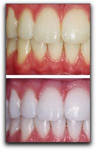 Laser teeth whitening is one of  the best teeth whitening methods to get white teeth. Dental solutions Bangalore is a famous laser dentistry for teeth whitening in India.