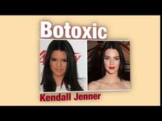 Botoxic- kendall jenner ( nose job? botox ? Fillers ??? ) - YouTube