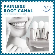Lingual Braces, Root Canal Treatment, Smile Makeover, Best Dentist, Dental Care, Schedule, Marketing, Easy, Timeline
