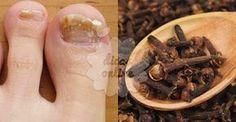 Cravo-da-índia: um remédio natural que será bem proveitoso para você!