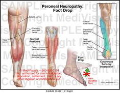 A medical illustration showing Peroneal Neuropathy: Foot Drop. Peripheral Neuropathy, Diabetic Nerve Damage, Nerve Anatomy, Tricyclic Antidepressant, Hair Health And Beauty, Muscular Dystrophies, Foot Drop, Body Organs