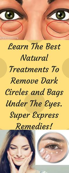 learn-best-natural-treatments-remove-dark-circles-bags-eyes-super-express-remedies/