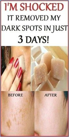 Healthy Lifestyle Tips, Healthy Tips, Healthy Skin, Healthy Women, Healthy Drinks, Healthy Habits, Healthy Beauty, Stay Healthy, Healthy Recipes