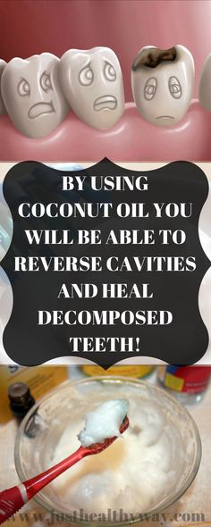 Coconut oil is one of the most versatile and healthiest things we can use. It provides a myriad of medicinal uses, and apparently, it is excellent for our dental health....