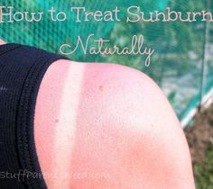 Different natural and effective remedies for sunburn relief! Pin now for when you need it later!