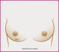 SIGNOS DEL CÁNCER DE MAMA Un hoyuelo en el pecho o una convergencia de la piel.