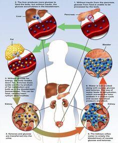 Top 5 Diabetic Ketoacidosis Treatment