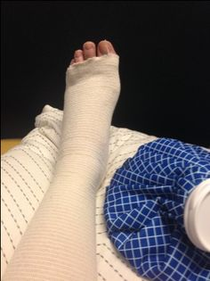 bunion surgery recovery 2014 - directions not included Emotional Photography, Photography Poses For Men, Tumblr Photography, Face Photography, Bunion Surgery, Ankle Surgery, Scammer Pictures, Baby Tumblr, Boys Clothes Style