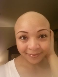 Who said you needed HAIR to be beautiful. Embrace your Baldness no matter the cause, you're beautiful just as you are.