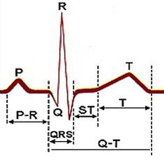 Electrocardiogram- A test you take to monitor the hearts rhythm.