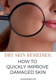 remedies for dry skin,dry skin remedies, dry skin care routine, dry skin on face, dry skin on face remedies, www.awakenedskin.com