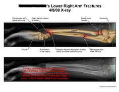 amicus,radiology,arm,fracture,open,Barton,radius,soft,tissue,deformity,deformed,thumb,carpus,subluxation,ulna,radial,head,humerus,Monteggia,Galeazzi,distal,radioulnar,joint