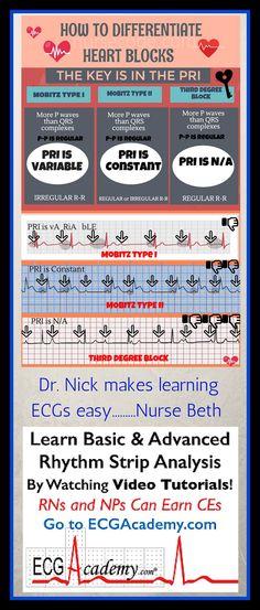 Earn ECG Certificate for Nurses
