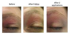 Eczema on the eyelid--not cute or fun! SOOTHE to the rescue www.kpartain.myrandf.com