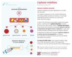 Ematologia in pillole #14 Aplasia midollare acquisita - Fondazione GIMEMA Onlus