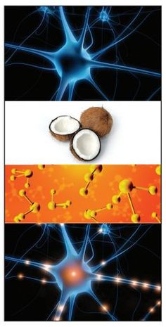 Coconut Oil for Alzheimer's