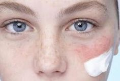Does Kojic Acid Work on Acne Scars? - Scars and Spots Grey Hair Treatment, Acne Treatment, Skin Treatments, Acne Skin, Acne Prone Skin, Bad Acne, Kojic Acid, Acne Breakout, Facial Wash