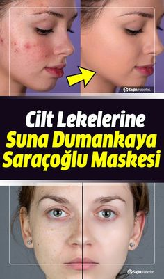 What is good for skin spots, how is it transmitted? Mask for skin spots İbrahim Saraçoğlu How To Treat Lice, Natural Hair Conditioner, Dark Curly Hair, Hair Care Oil, Hair Growth Cycle, Hair Protein, Skin Spots, Hair Rinse, Lavender