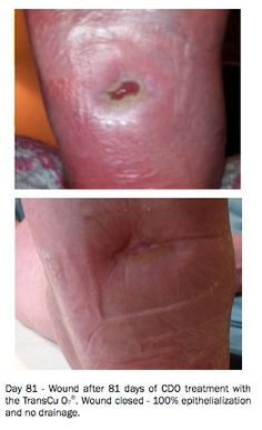 diabetic-wound