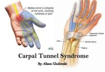 Wrist Pain Remedy – Carpal Tunnel Syndrome Exercise and Treatment